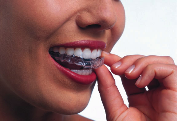 hard acrylic night guard for teeth grinding fits seamlessly on teeth