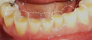 bruxism: severe case of teeth regression loss of tooth structure