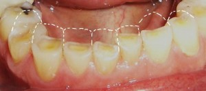 severe case of teeth regression loss of tooth structure