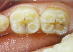 exposed dentin effect of teeth grinding