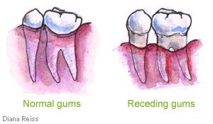 3 ways to prevent gum recession